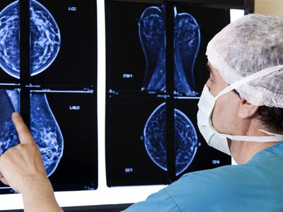 doctor looking at MRI results of tumors