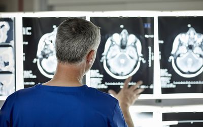 Radiologist looking at brain scan