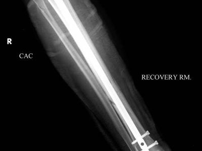 This patient had a metal rod (intramedually rod) placed within her broken tibia to realign the bone and hold the tibia fracture in position.