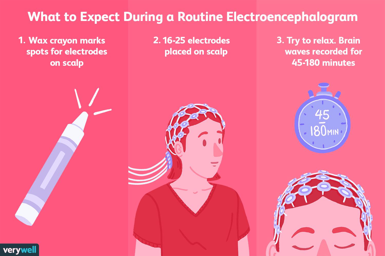 Electroencephalogram (EEG): Uses, Procedure, Results