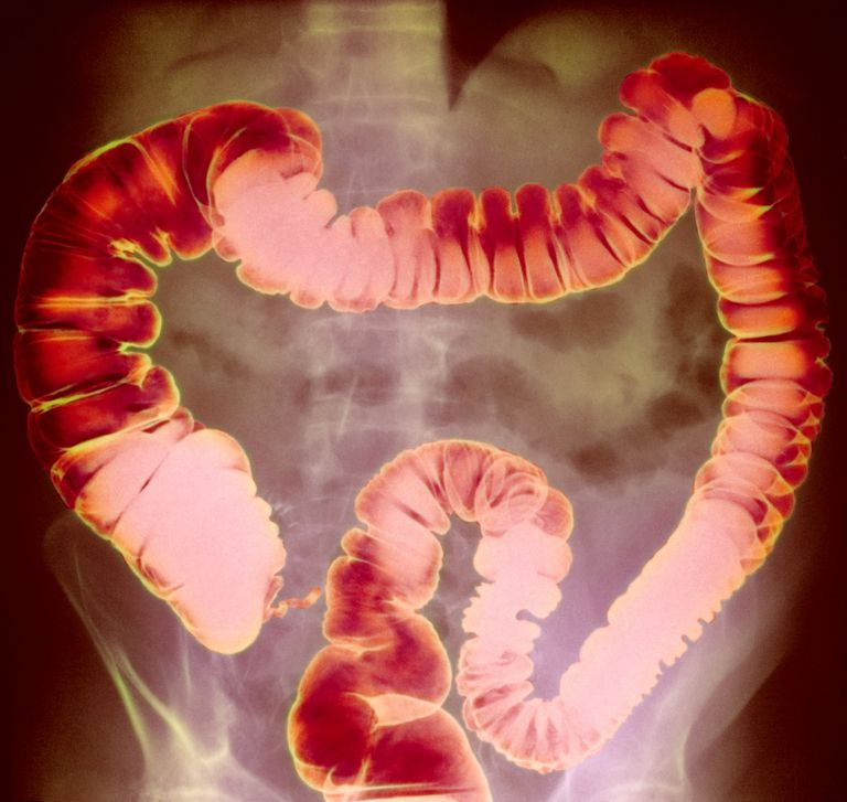 X-ray of the large intestine