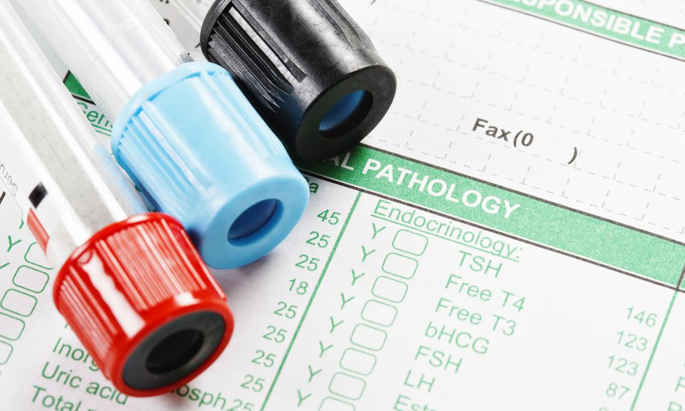 Reverse T3 RT3 thyroid testing