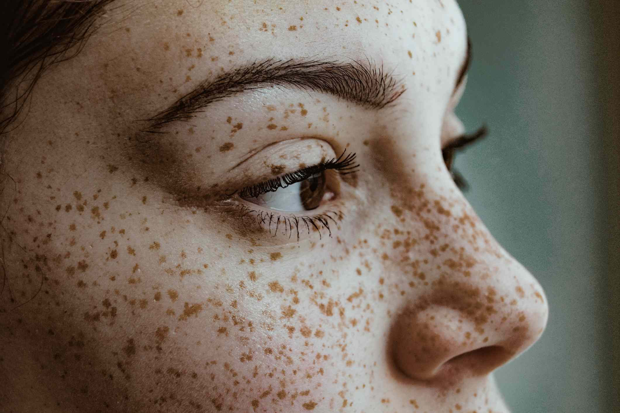 woman with freckles on face