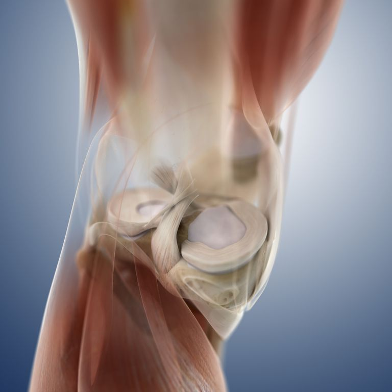 Meniscus Tear Vs. Cartilage Tear