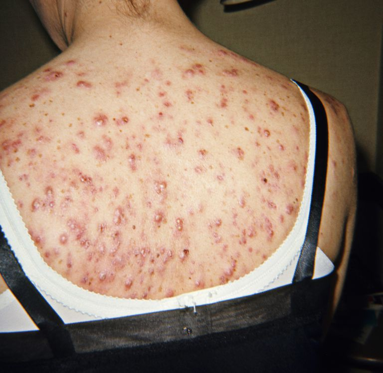 Body acne on woman's back.
