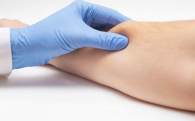 Doctor dermatologist examines the subcutaneous wen on the patient's arm, close-up. Skin cancer, malignancy disease concept - stock photo