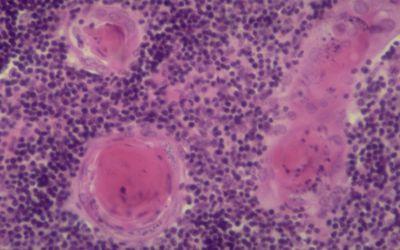 Thymus Tissue