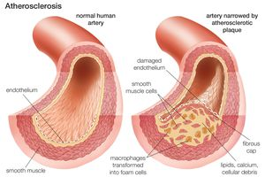 Comparison of a normal artery with an artery narrowed by atherosclerotic plaque