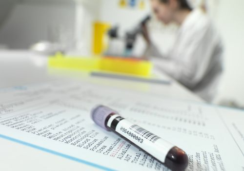 Close up of a test tube with blood on top of a report of a blood chemistry panel. In the background, blurred, is a person looking in a microscope in a lab.