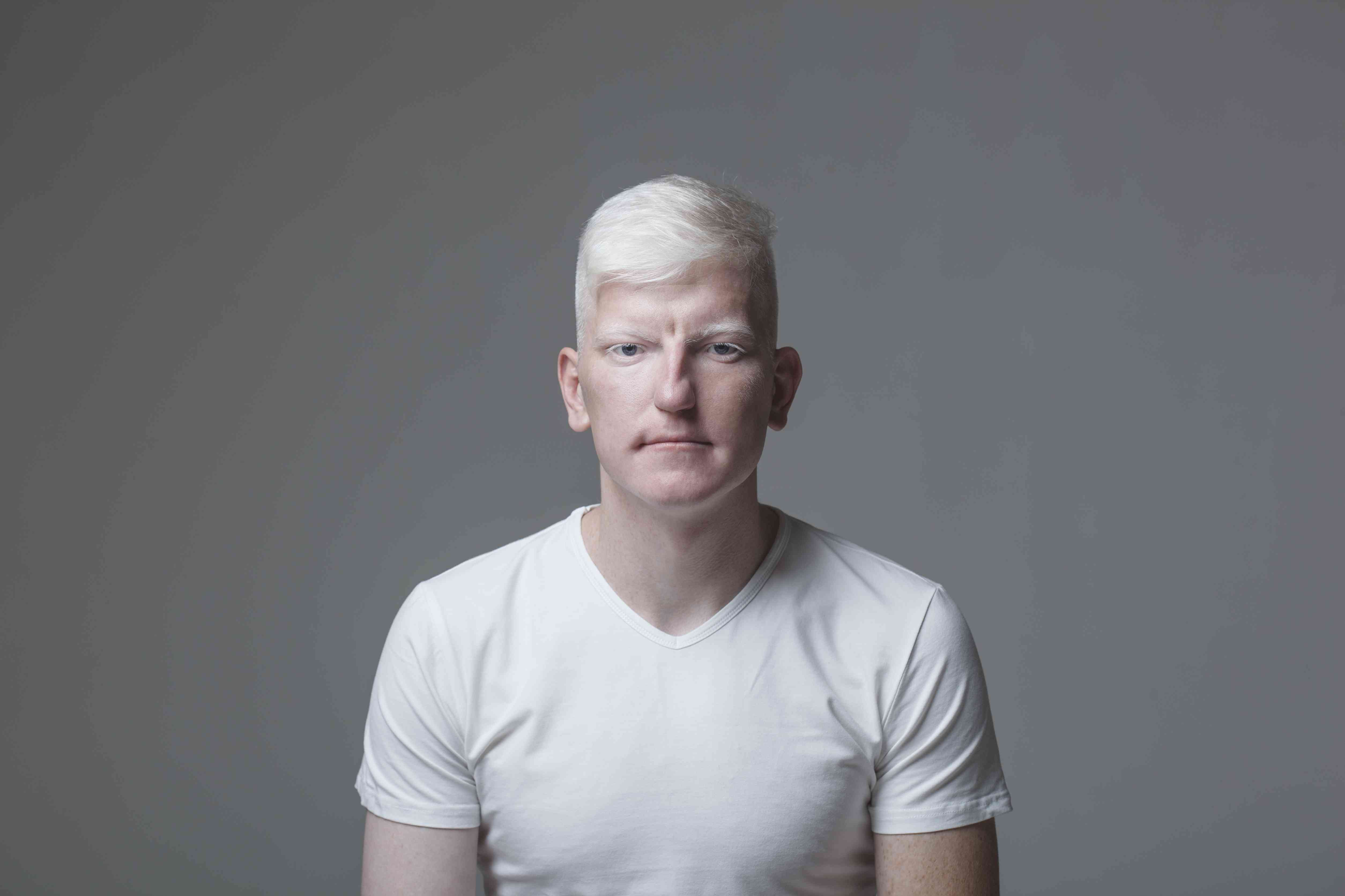 Portrait of young albino man against gray background