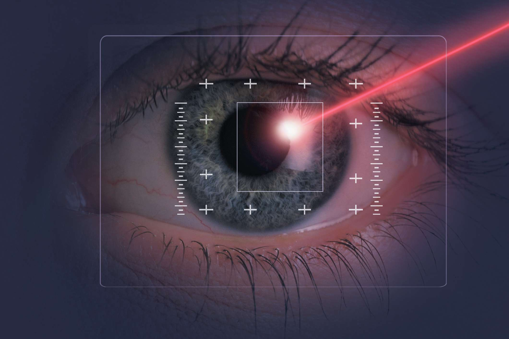 Eye with a beam of light aimed at the surface