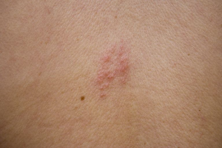 Shingles on back
