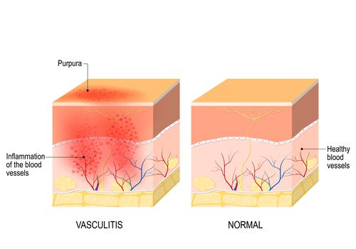 Illustration of skin both normal and with vasculitis