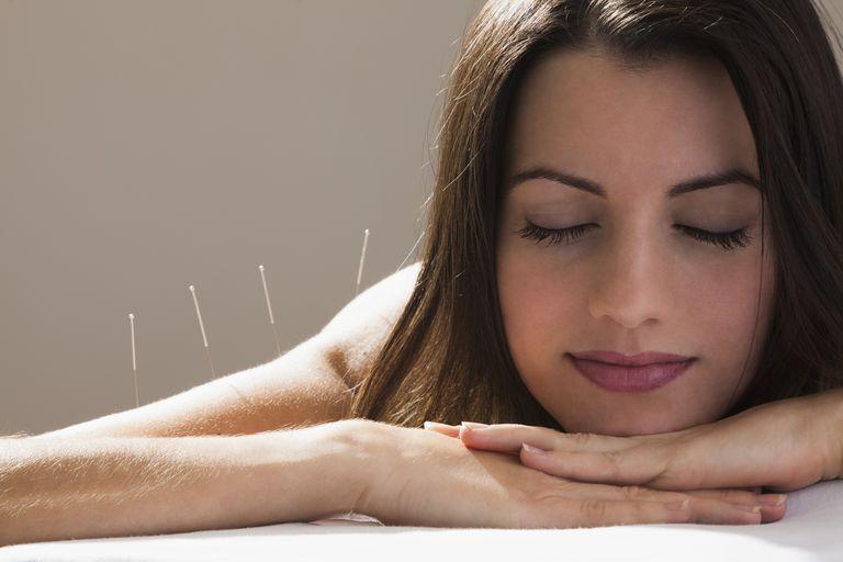 Акупунктура при синдроме хронической усталости