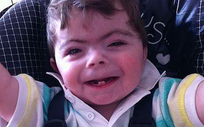 a child with Cornelia de Lange Syndrome