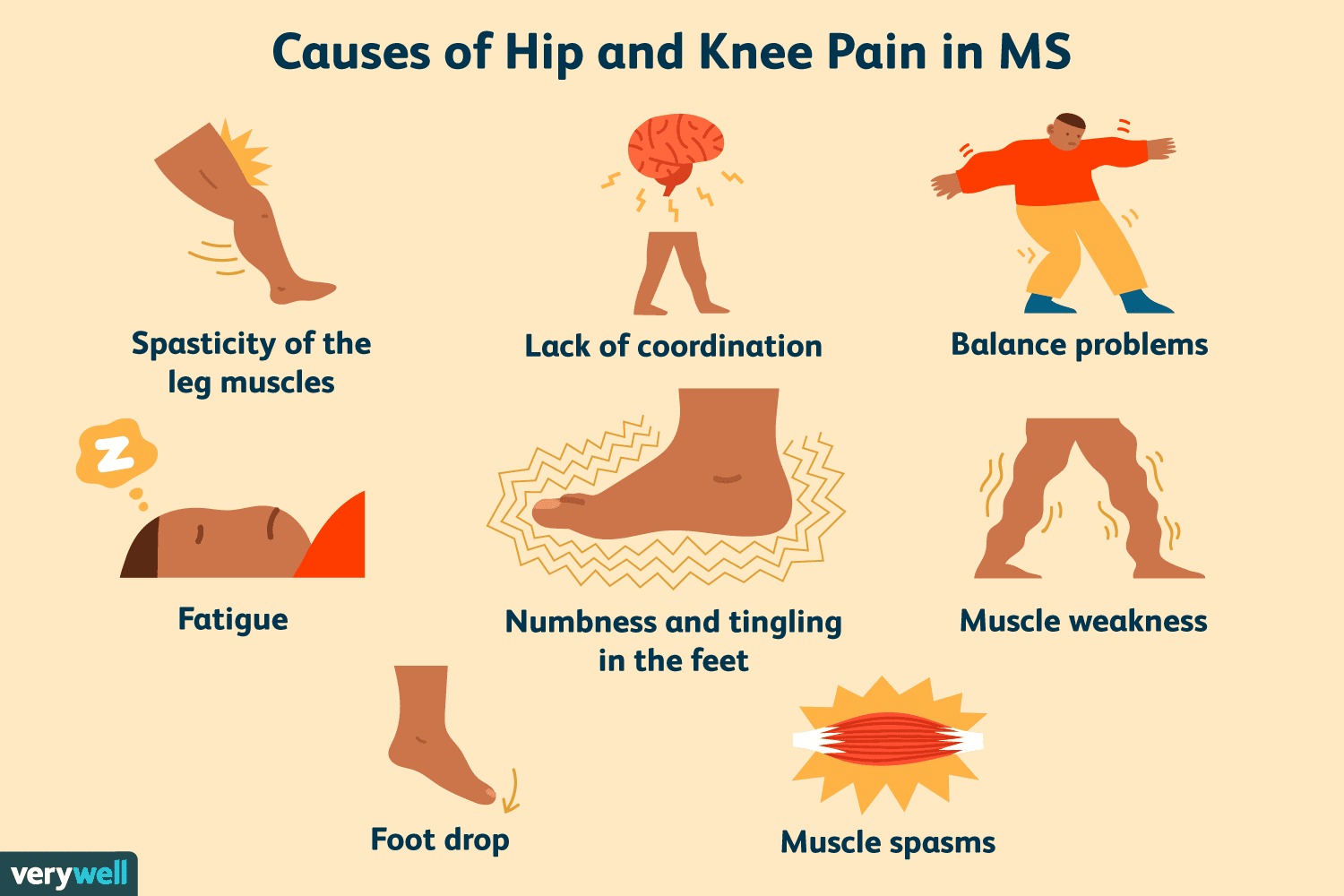 Causes of Hip and Knee Pain in MS