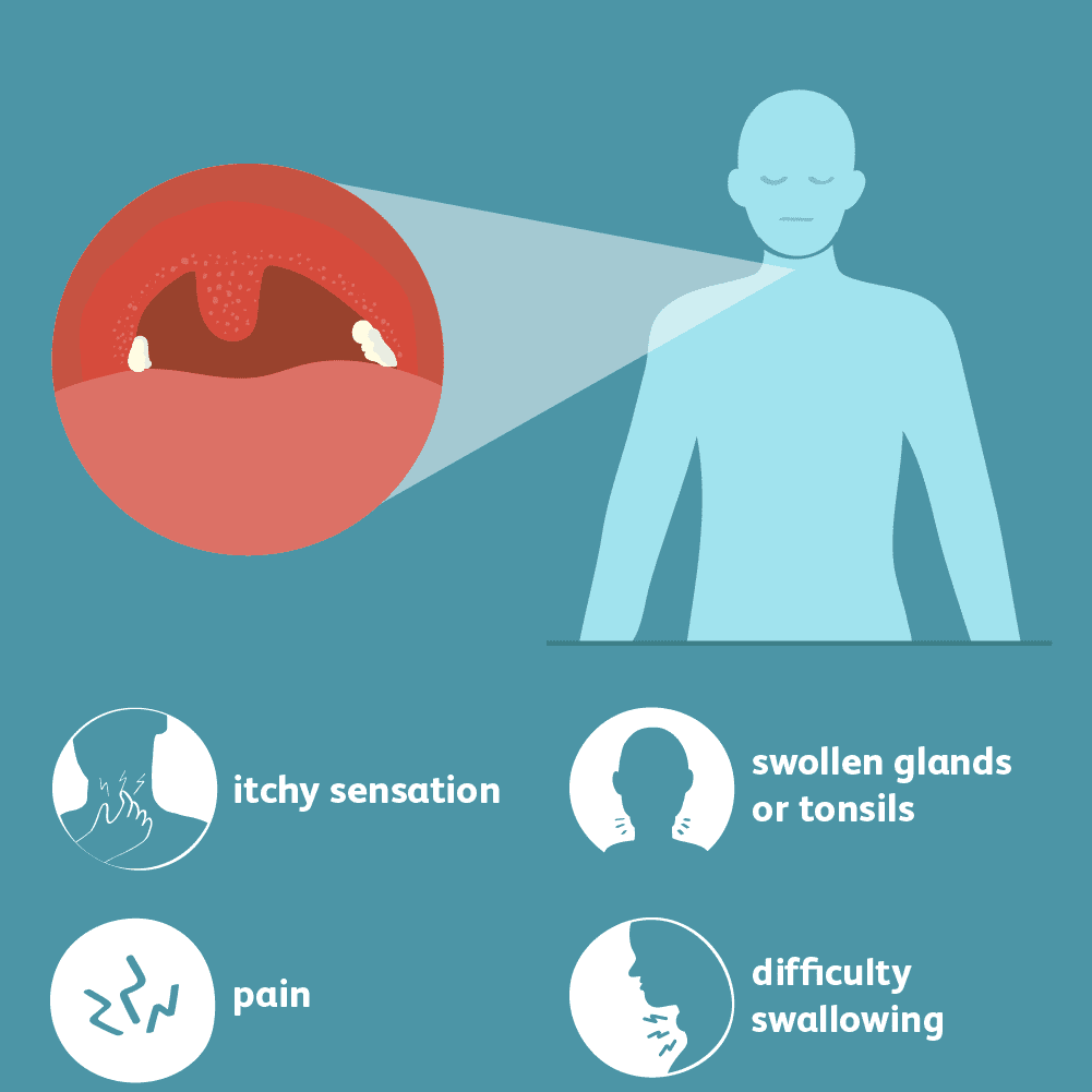 Sore Throat: Signs, Symptoms, and Complications