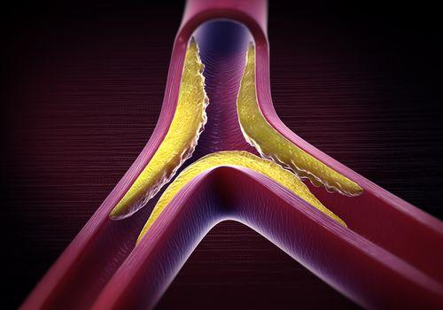 An illustration depicting atherosclerosis.