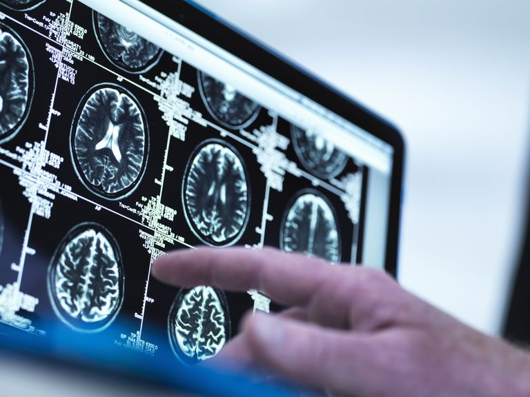 Doctor viewing a series of MRI on a screen