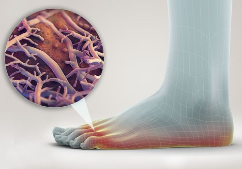 Athlete's Foot illustration