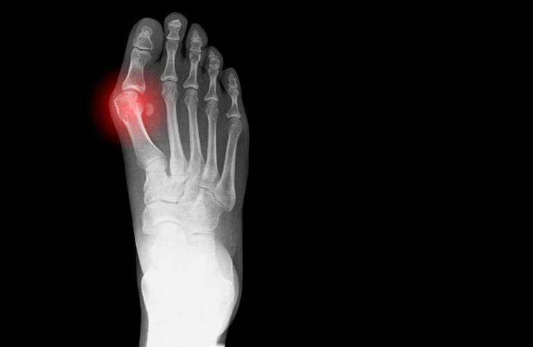 X-ray showing bunion on human foot