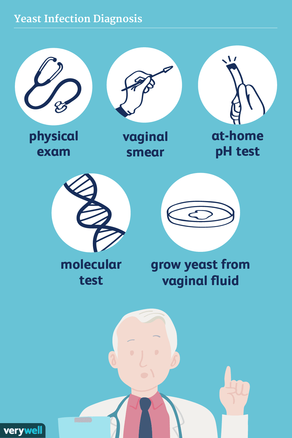 yeast infection diagnosis