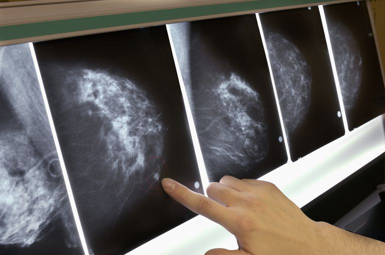 Woman pointing to area on mammogram x-ray, close-up