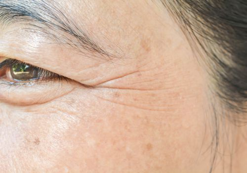 Close up of wrinkled, puffy eye area