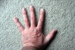 Blistered hand