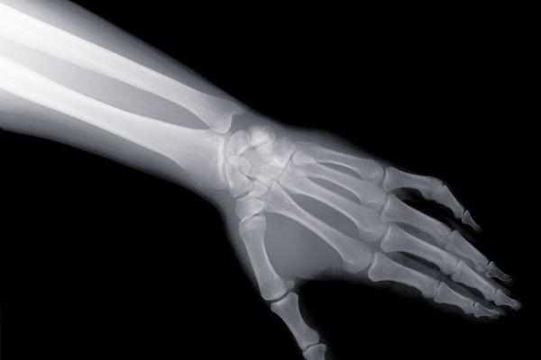 Wrist x-ray