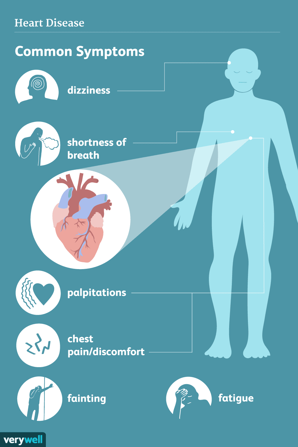 heart disease signs symptoms and complications