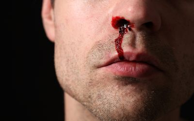 Bleeding After A Tonsillectomy