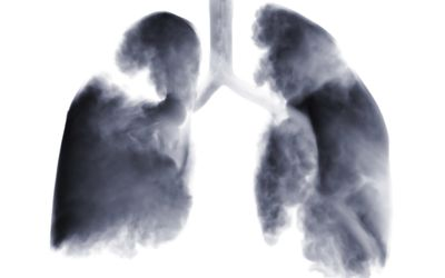 imaging scan of lungs showing the most common type of lung cancer