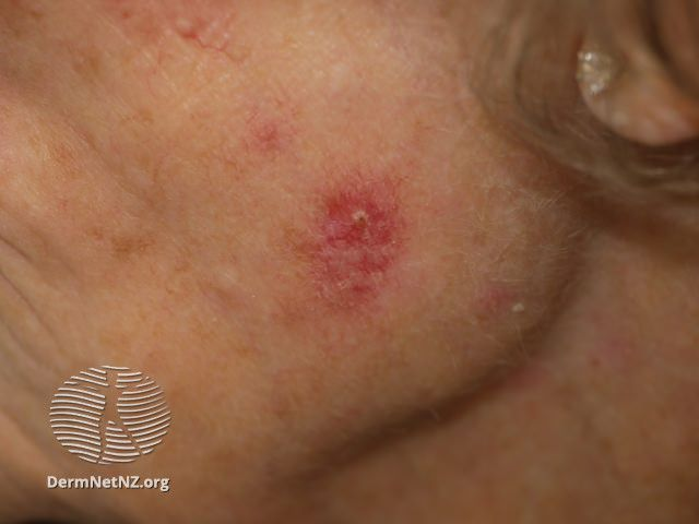 Superficial basal cell carcinoma, face