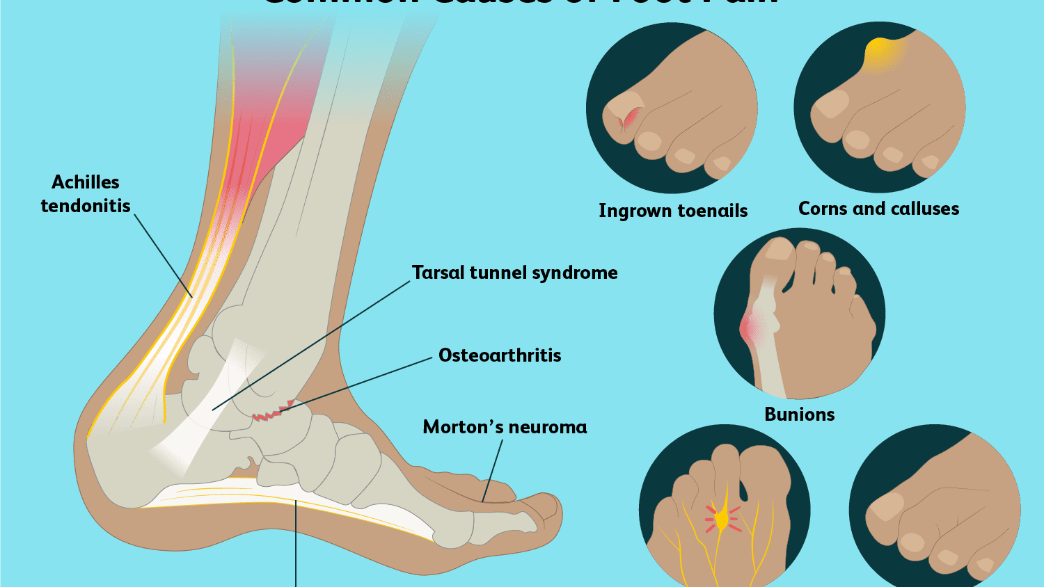 Foot Anatomy Physiology And Common Conditions