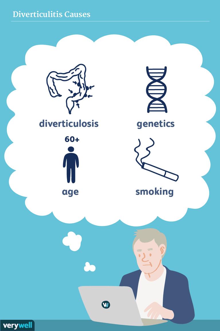 diverticulitis causes