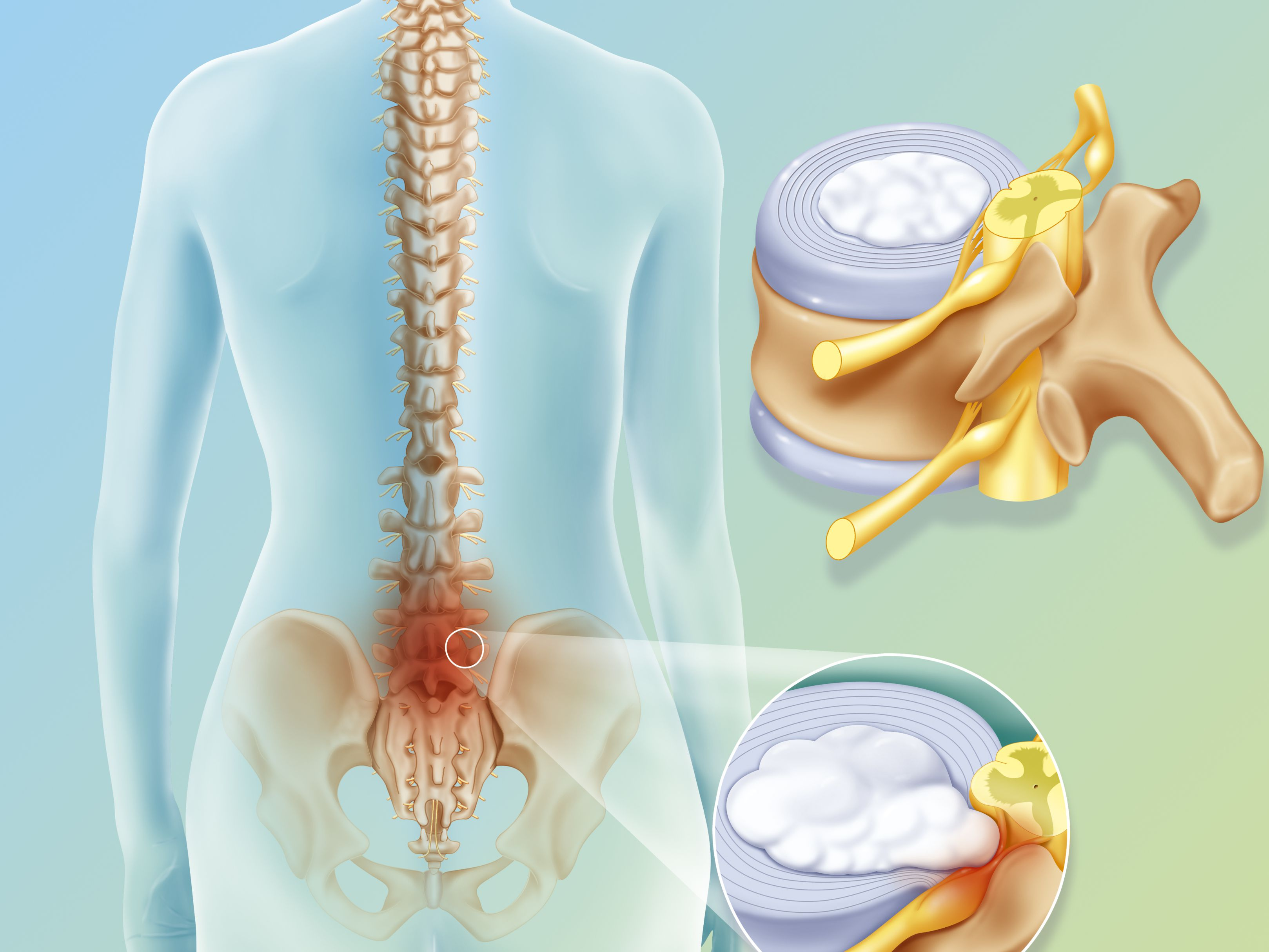 Reasons for Revision Spine Surgery