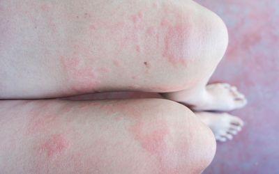 skin induration