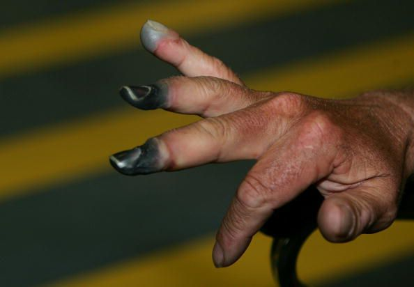 Frostbitten fingertips