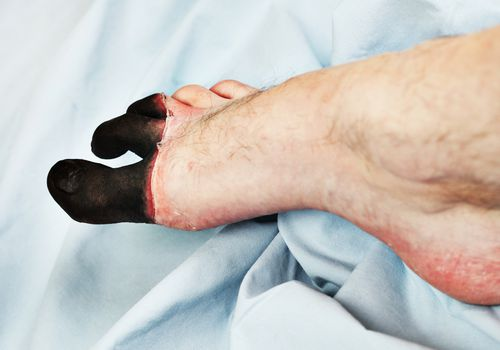 A foot with frostbite on the toes