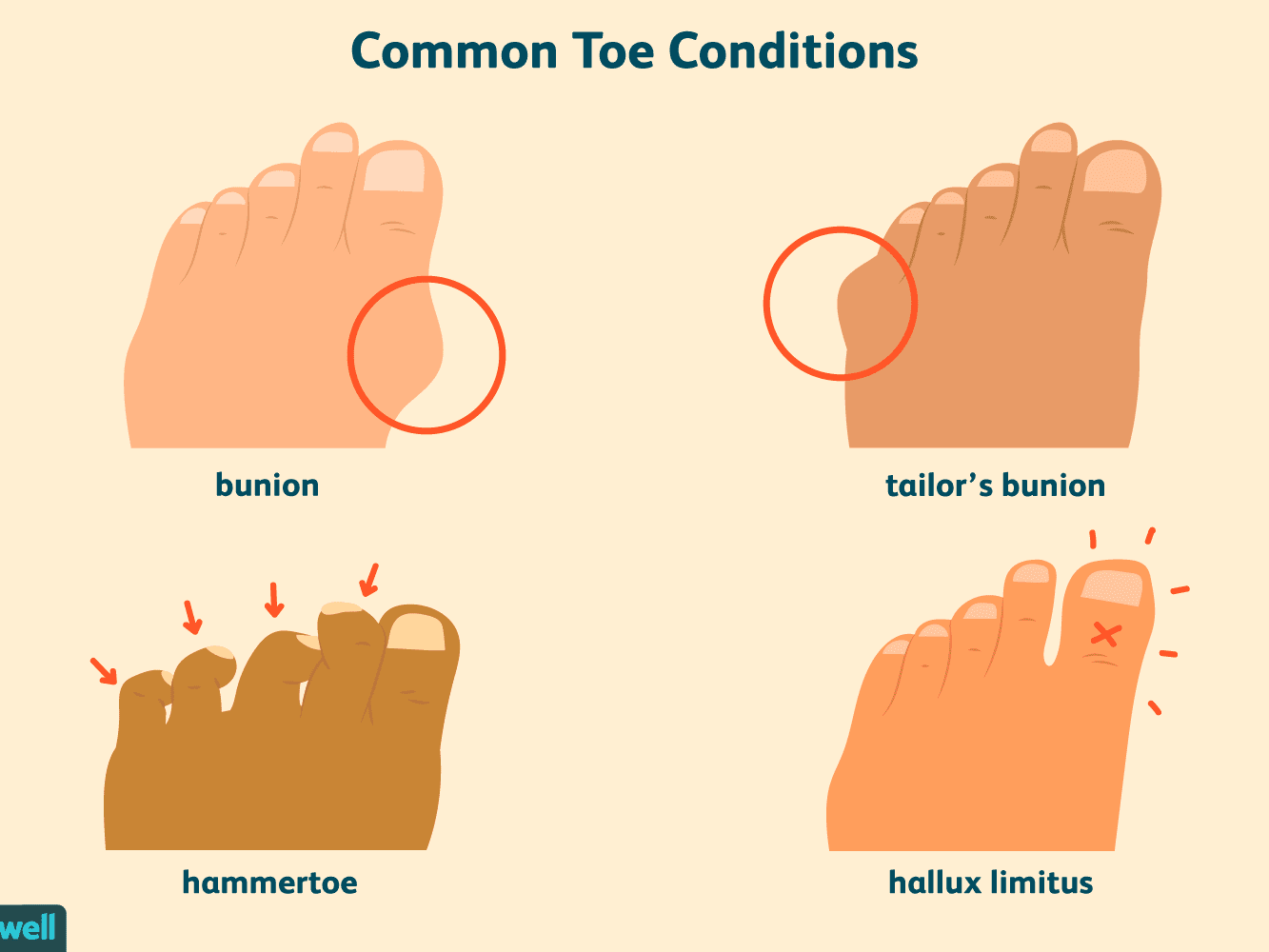 Common Toe Problems That Can Make Feet Look Abnormal