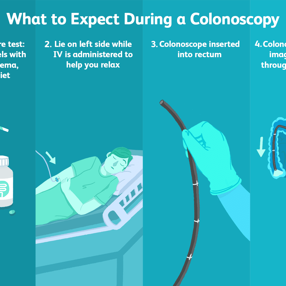 Colonoscopy: Uses, Side Effects, Procedure, and Results
