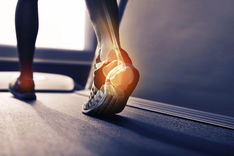 Illustration of a woman's ankle joint overlayed on a photo of the woman walking on a treadmill