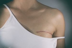 breast cancer surgery scar