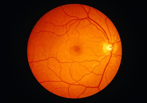 Image of a retina