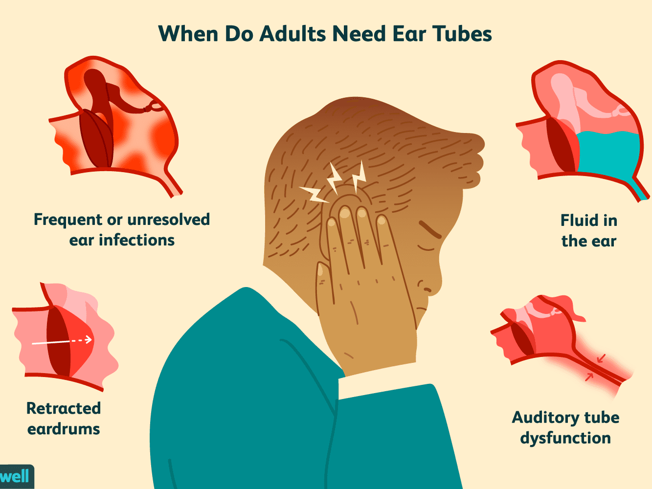Ear infections in adult