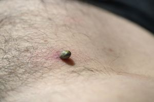 Tick attached to the skin of a man's stomach and sucking blood