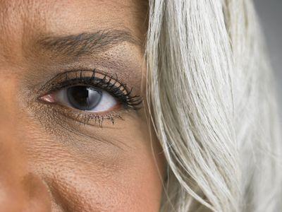 An older woman with dark eye circles