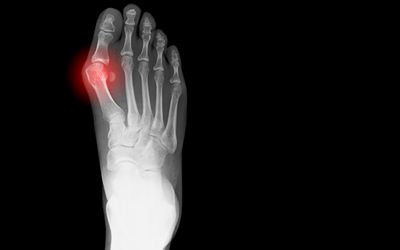 5 Causes Of Pain In The Big Toe Joint