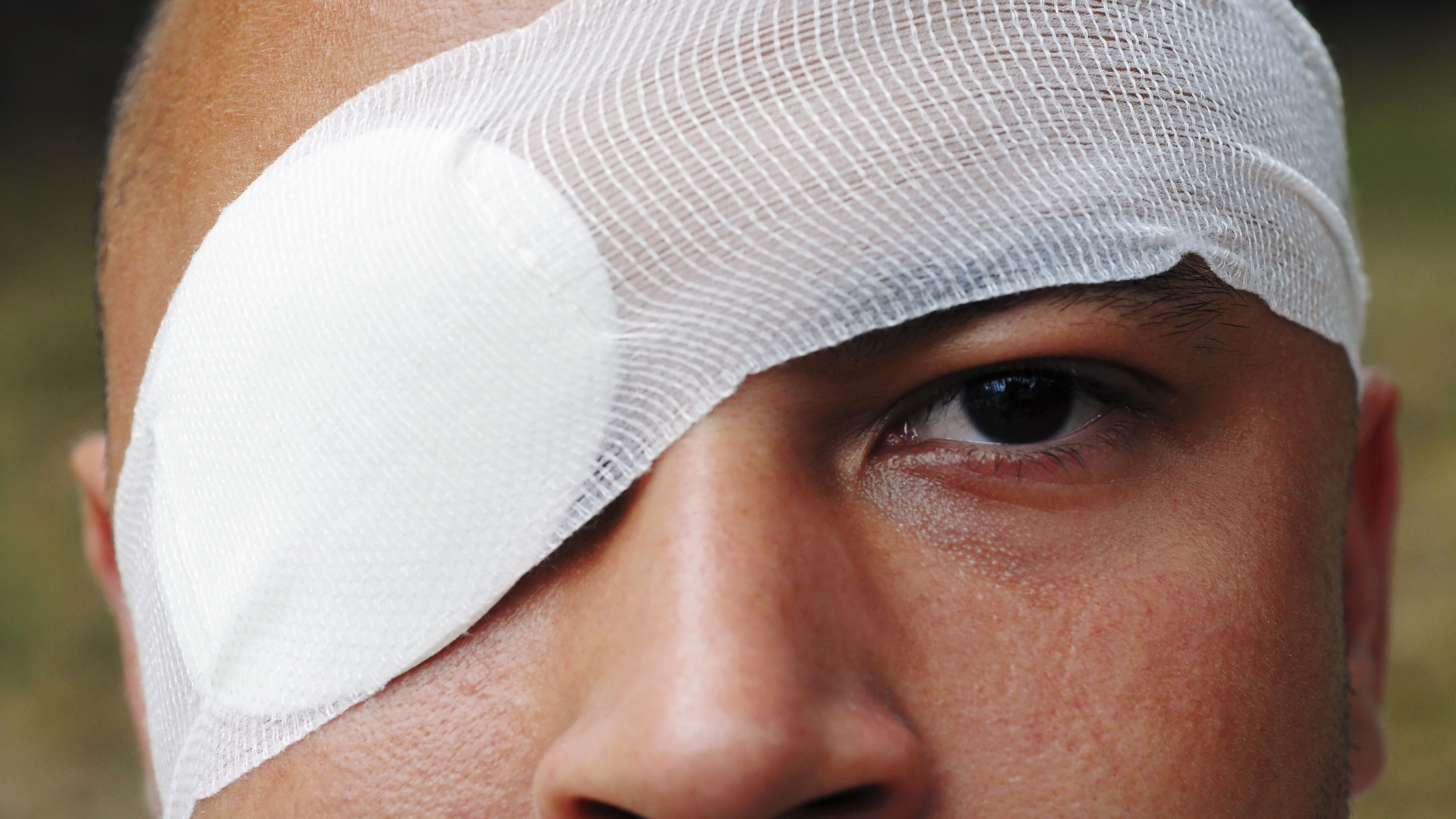 Trapped By Ice Up To Her Eyeballs And >> How To Deal With An Orbital Blowout Fracture